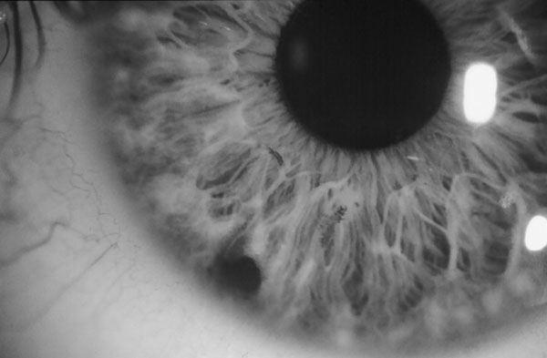 vedere înaintea ochilor punct negru