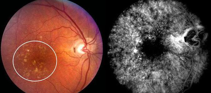 viziunea maculară este acuitatea vizuală 0 05-1